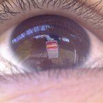 corneal-imaging
